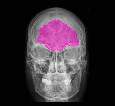 semantic for ai in brain diagnosis