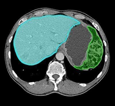 segmentation for ai in liver diagnosis