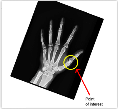 annotation for point of interest in X-rays