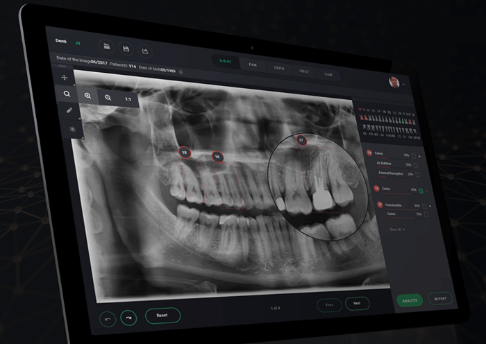 AI in Dental Radiology